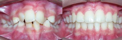casos resueltos en centro de ortodoncia zaragoza