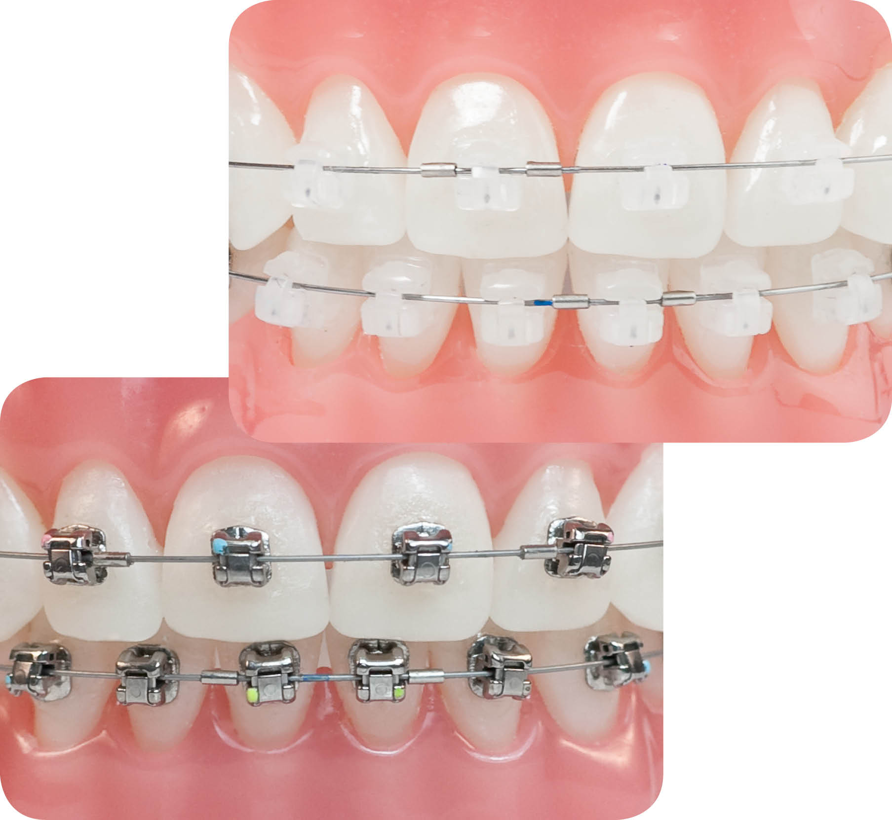 sistema damon ortodoncia para adultos