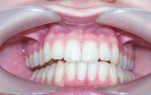 rehabilitacion neuro oclusal en centro de ortodoncia zaragoza
