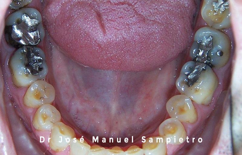 caso 2 clase esquelética III oclusal inferior