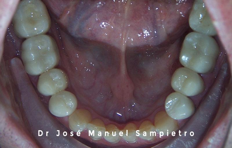 caso 2 clase esquelética III oclusal inferior después