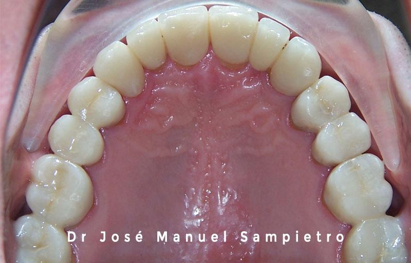 caso 2 clase esquelética III oclusal superior después