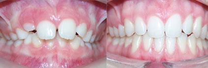casos resueltos en centro de ortodoncia zaragoza sobremordida aumentada